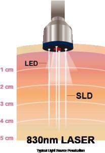 laser_desc